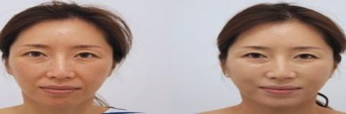 Non-surgical Breast Augmentation - UP2C Plastic Surgery