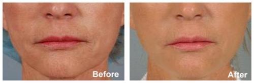 Oracle Skin Clinic in Seoul | Skin Rejuvenation